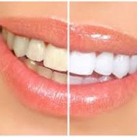 bijelenje-zuba_1